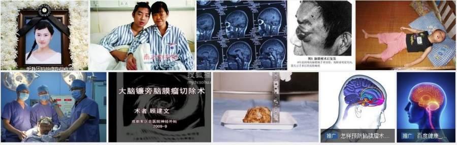 """消癌法""""发明人——冉明医师"""